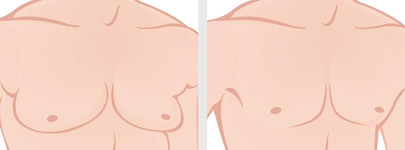 Ask the Doctor – Gynecomastia